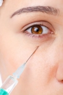 Aging can cause under-eye circles, but so can genes.