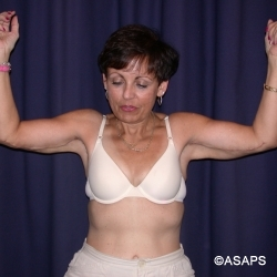 Bliateral Brachioplasty with Liposuction of Arms - After