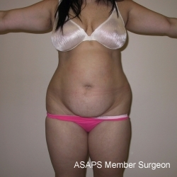 Liposuction- Before