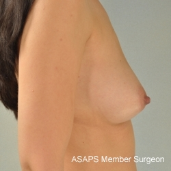 Breast Augmentation- Before