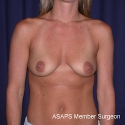 Bilateral Breast Augmentation with Extended Creasant Mastopexy's - Before