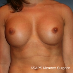 Natural Proportional Breast Augmentation - After
