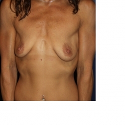 Natural Proportional Breast Augmentation- Before