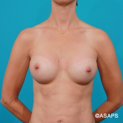 High Profile Gel Implants - After