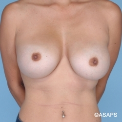 Breast Reaugmentation - Before
