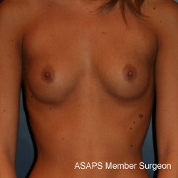 Proportional Breast Augmentation- Before
