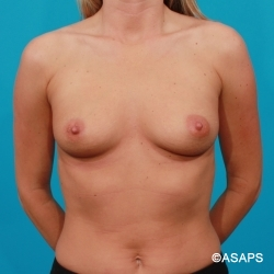 Saline Breast Augmentation- Before