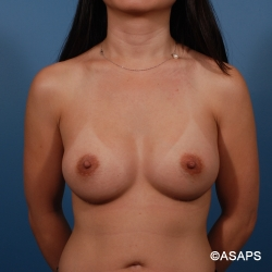 Textured Silicone Breast Augmentation - After