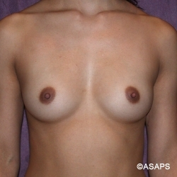 Subpectoral breast augmentation with silicone gel implants- Before