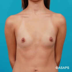 Silicone Breast Implants- Before