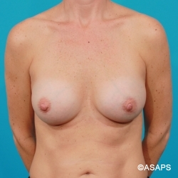 Silicone Breast Augmentation - After