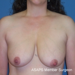 Breast Lift with Augmentation- Before