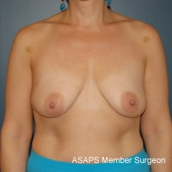 Bilateral vertical breast lift with saline implants- Before