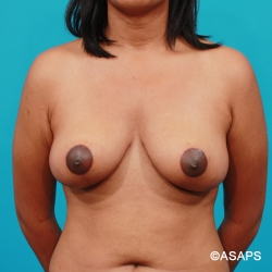 Breast Lift - After