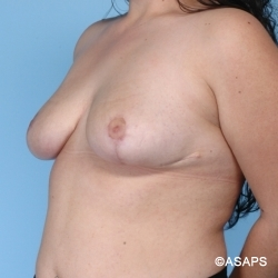 Oblique Set