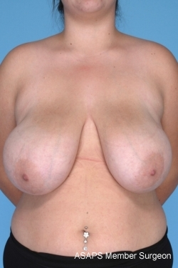 Breast Reduction- Before
