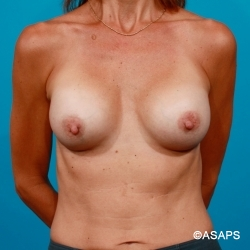 Capsular Contracture Revision Breast Augmentation - After