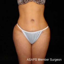 Buttocks Augmentation Via Fat Grafting with Liposuction of Abdomen, Waist, Flanks, Outer Thighs, and Mini Tummy Tuck - After