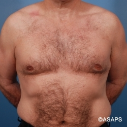 Gynecomastia Treatment - After