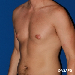 Oblique view Gynecomastia male breast reduction