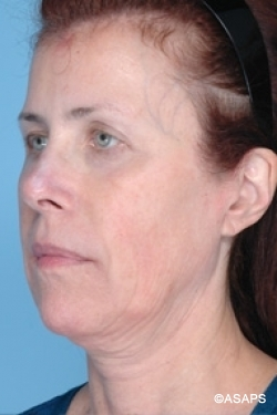Non-Surgical Focused Ultrasound- Before