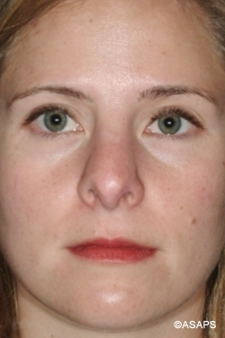 Revision Rhinoplasty- Before