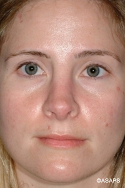 Revision Rhinoplasty - After