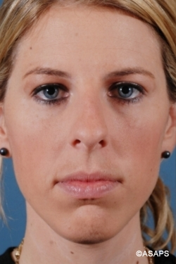 Primary Rhinoplasty- Before