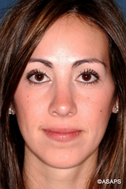 Primary Rhinoplasty - After