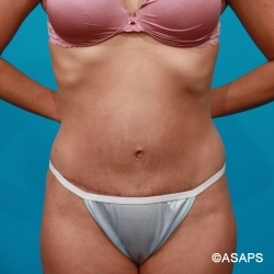 Tummy Tuck & Flank Lipo - After