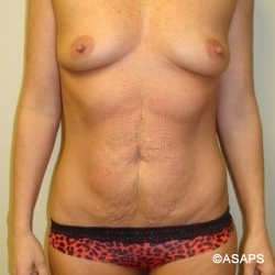 Tummy Tuck- Before
