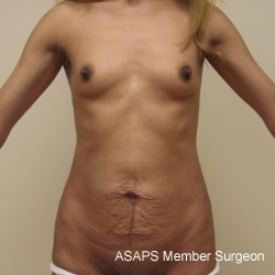 Tummy tuck with breast augmentation- Before