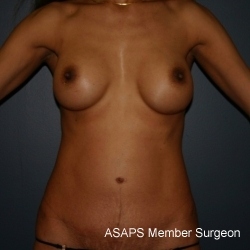 Tummy tuck with breast augmentation - After