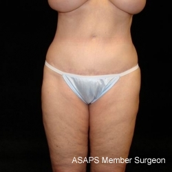 Full Abdominoplasty with Liposuction of Abdomen, Waist, Flanks, Dorsal Roll, and Outer Thighs - After