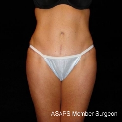 Full Abdominoplasty with Liposuction of Abdomen, Waist, Flanks, Inner and Outer Thighs - After