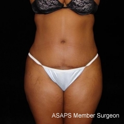 Full Abdominoplasty with Liposuction of Abdomen, Waist, Flanks, Dorsal Roll with Fat Grafting to Buttocks - After