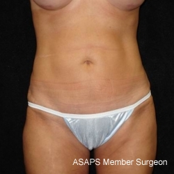 Extended Mini Abdominoplasty with Liposuction of Abdomen, Waist, Flanks, Inner and Outer Thighs - After