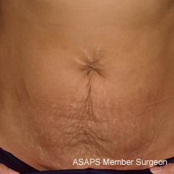 Abdominoplasty and Liposuction of Flank- Before