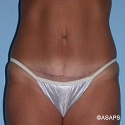 Tummy Tuck - After