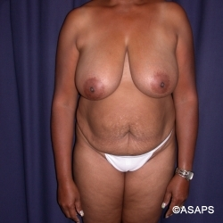 Mommy Make Over: Tummy Tuck and Bilateral Breast Reduction- Before