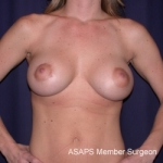 Bilateral Breast Augmentation with Extended Creasant Mastopexy's  - After