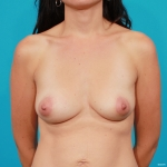 Silicone Breast Augmentation- Before