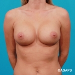 Saline Breast Augmentation - After