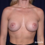 Breast Augmentation-PeriAreolar - After