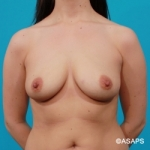Saline Breast Implants- Before