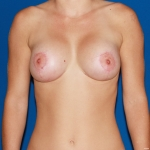 Breast Lift- Anchor with silicone breast augmentation - After
