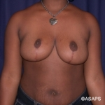 Bilateral Breast Reduction - After