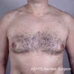Gynecomastia New Jersey- Before