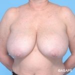 Bilateral Breast Reduction - Before