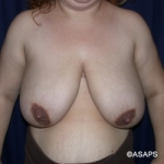 Bilateral Breast Reduction- Before